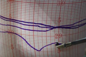 Image of Trace from Short & Mason Architectural Barograph & Dial